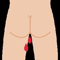 肛門から血が出る