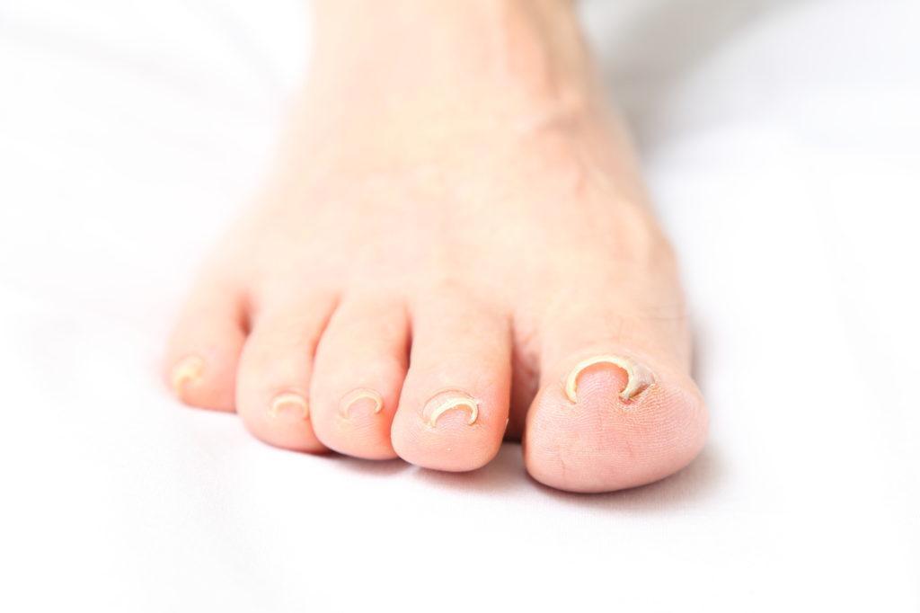 痛い 足 の 指 が 足の指が痛いとき、骨折したかどうかを自分で確かめる方法