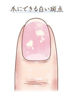爪 の 病気 種類